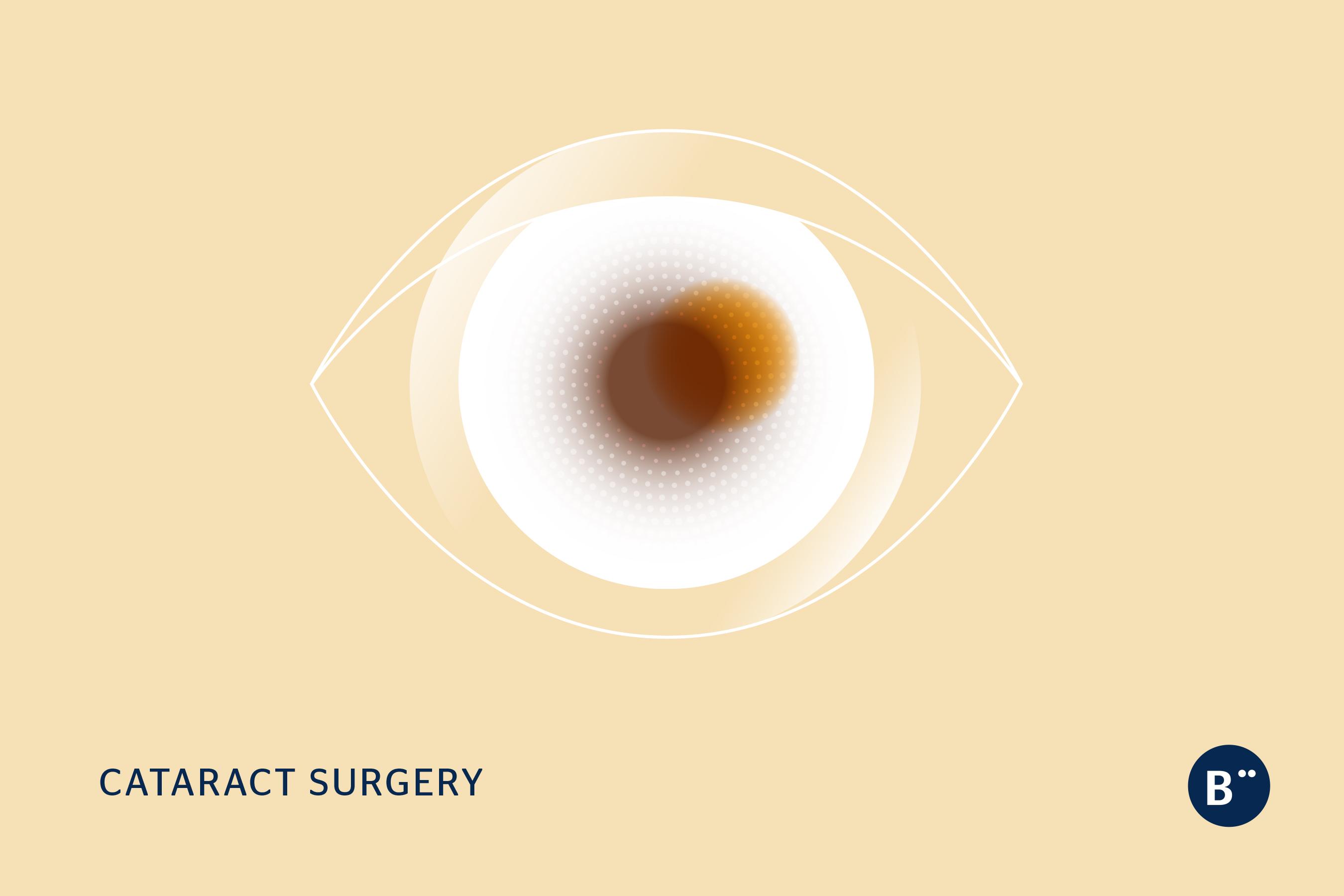 dr_bohm_cataract