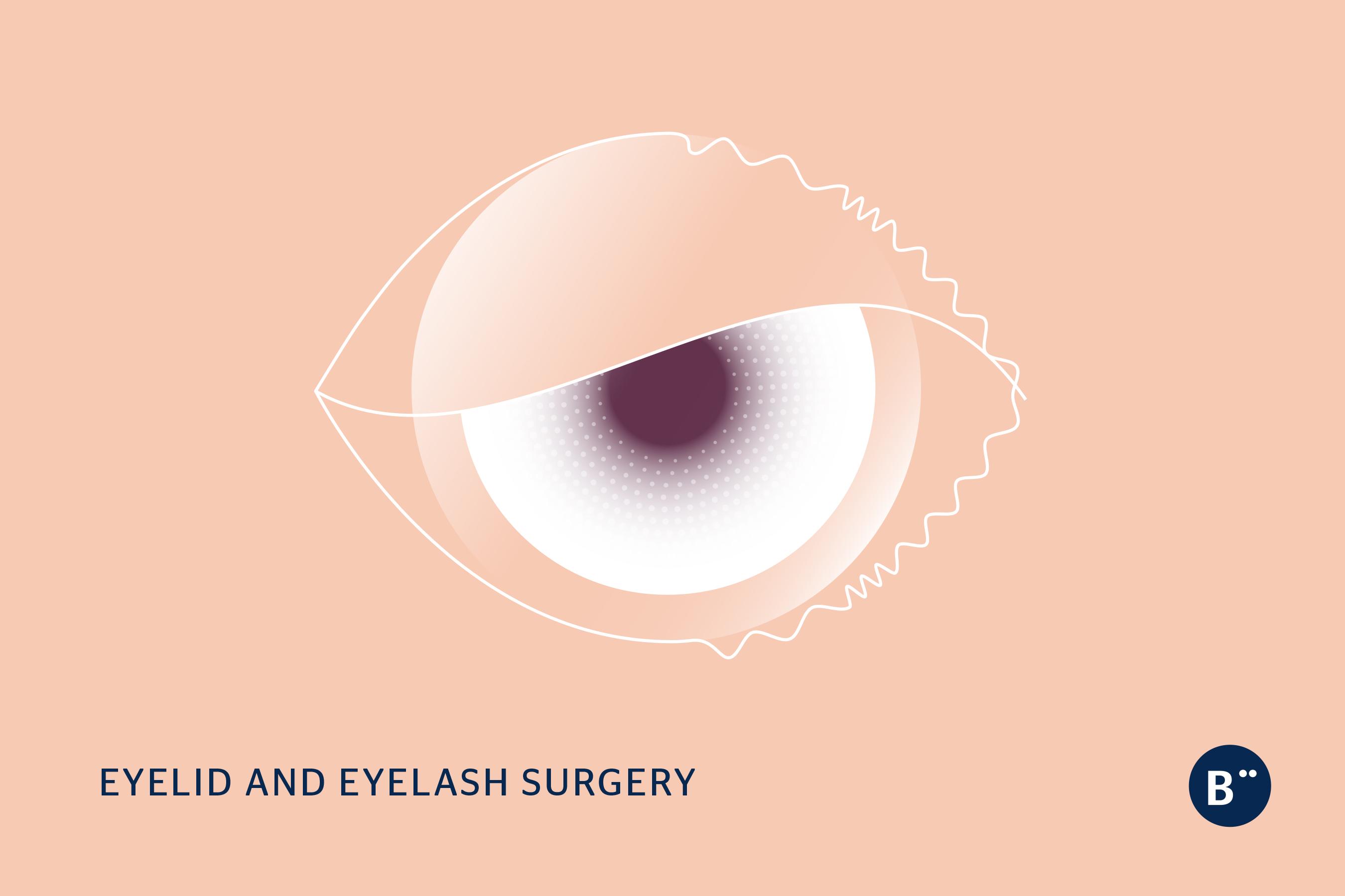 dr_bohm_eyelid_eyelash