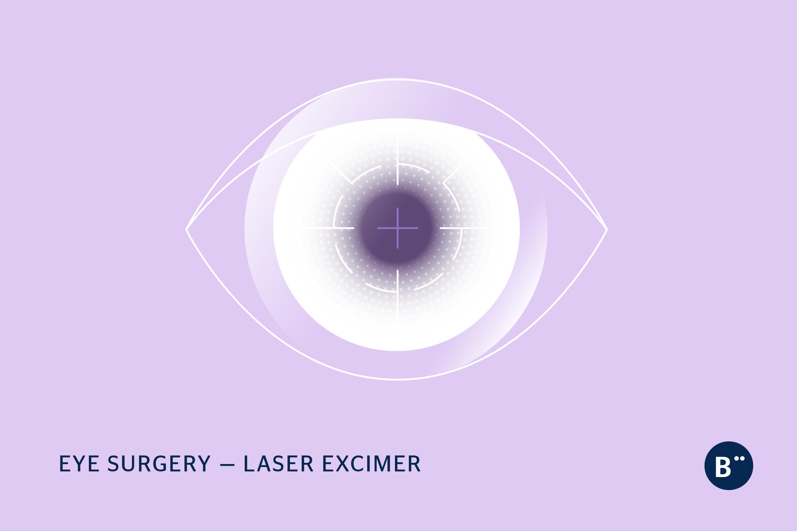 dr_bohm_laser_excimer